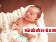 Nhận biết màu da cho trẻ sơ sinh cực kỳ dễ dàng
